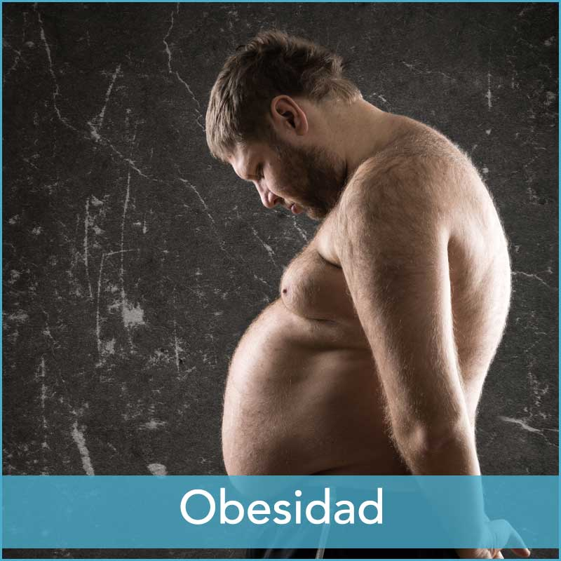 Obesidad Barcelona Clínica Mandri