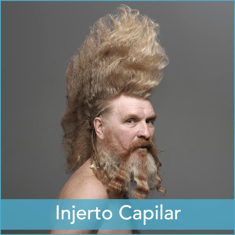 Injerto Capilar Barcelona Clínica Mandri