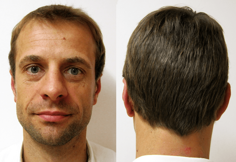otoplastia cirugía de las orejas