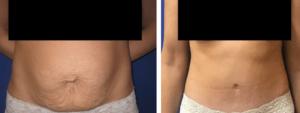 Abdominoplastia ¿Cómo puedo mejorar mi figura?